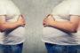 Etwa die Hälfte der Psoriasis-Patienten leidet am metabolischen Syndrom