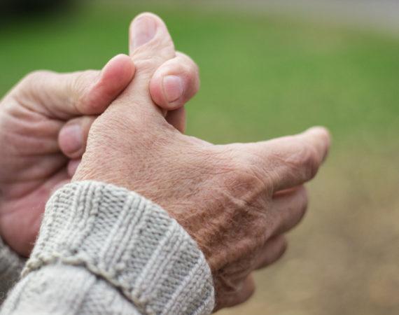 Welche Faktoren können auf eine Psoriasis-Arthritis hinweisen?