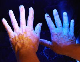 Wirksamkeit von Salzwasserbädern und künstlichem UV-Licht bei Psoriasis