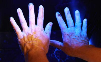 UV-licht bei schuppenflechte, psoriasis